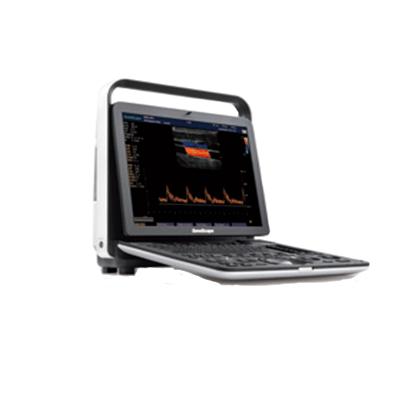 Ultrasonido SonoScape S9Pro