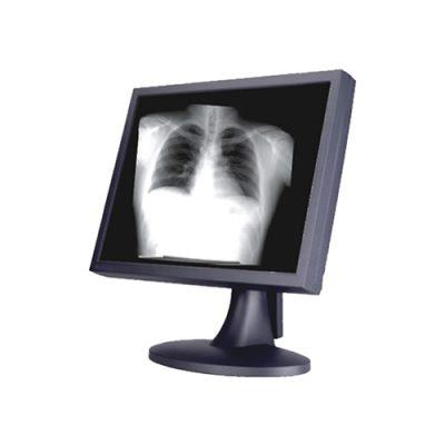 Monitor Clínico SCM-MB